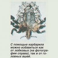 С помощью карбарила можно избавиться от лобковых и головных вшей