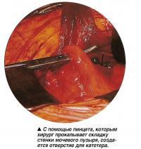 С помощью пинцета, создается отверстие для катетера