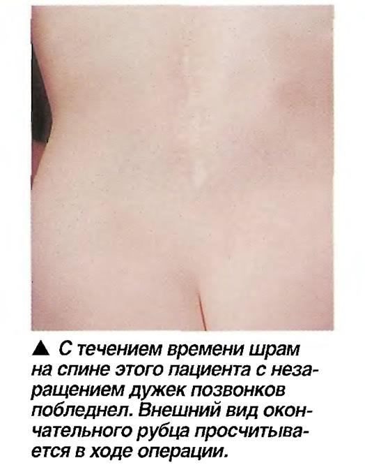 С течением времени шрам на спине этого пациента с неза-ращением дужек позвонков побледнел