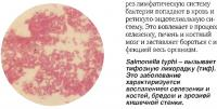 Salmonella typhi - вызывает тифозную лихорадку (тиф)