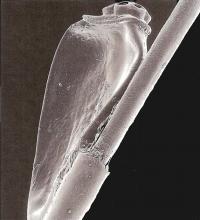 Самка вшей откладывает яйца на поверхность волоса, снимок сделан с увеличением в 130 раз