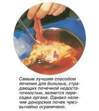 Самым лучшим способом лечения для больных является пересадка почки
