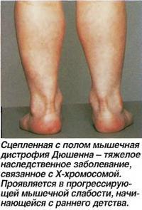 Сцепленная с полом мышечная дистрофия Дюшенна