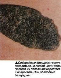Себорейные бородавки могут находиться на любой части тела