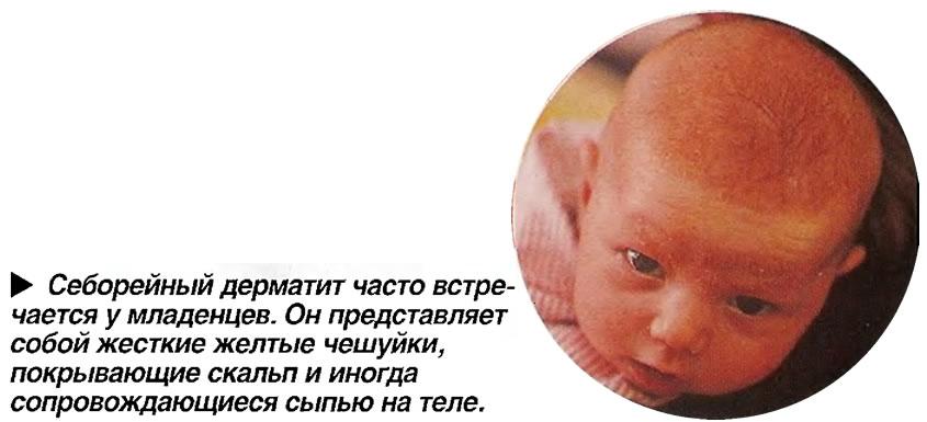 Себорейный дерматит часто встречается у младенцев