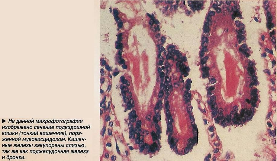 Сечение подвздошной кишки (тонкий кишечник), пораженной муковисцидозом