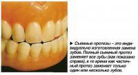 Съемные протезы - это индивидуально изготовленная замена зубов