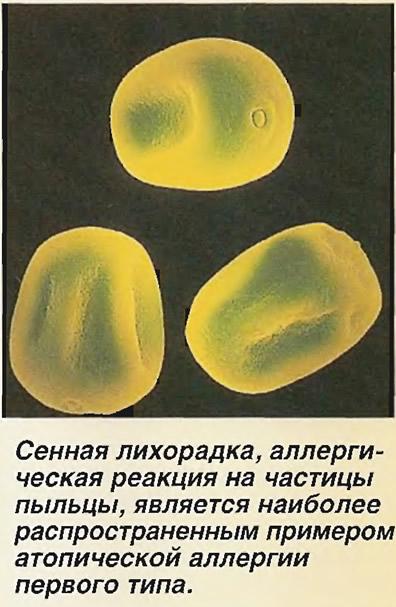 Сенная лихорадка, аллергическая реакция на частицы пыльцы
