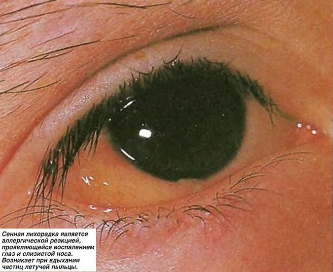 Сенная лихорадка является аллергической реакцией