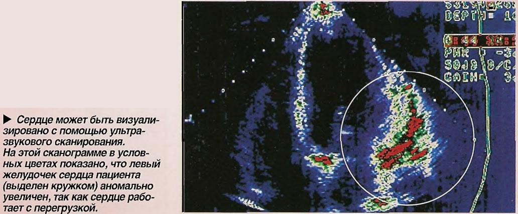 Сердце может быть визуализировано с помощью ультразвукового сканирования