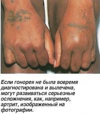 Серьезные осложнения, как, например, артрит