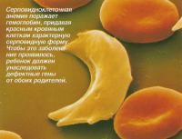 Серповидноклеточная анемия поражает гемоглобин