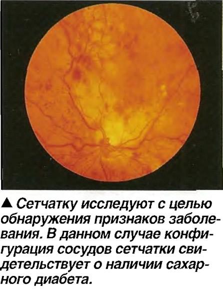 Сетчатку исследуют с целью обнаружения признаков заболевания