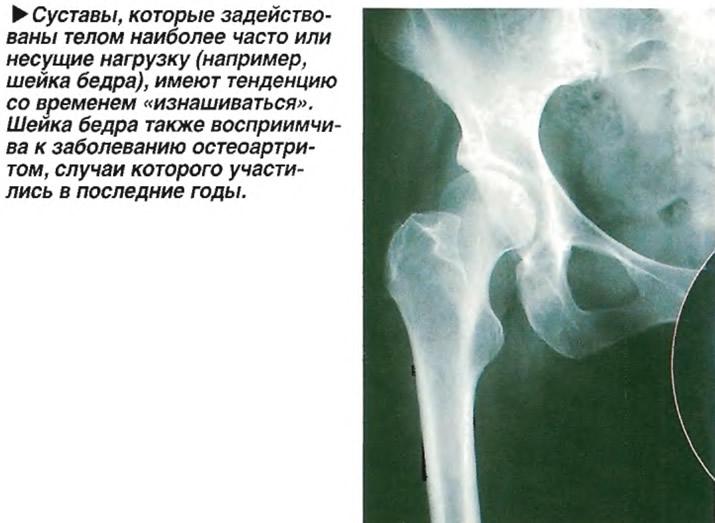 Шейка бедра также восприимчива к заболеванию остеоартритом