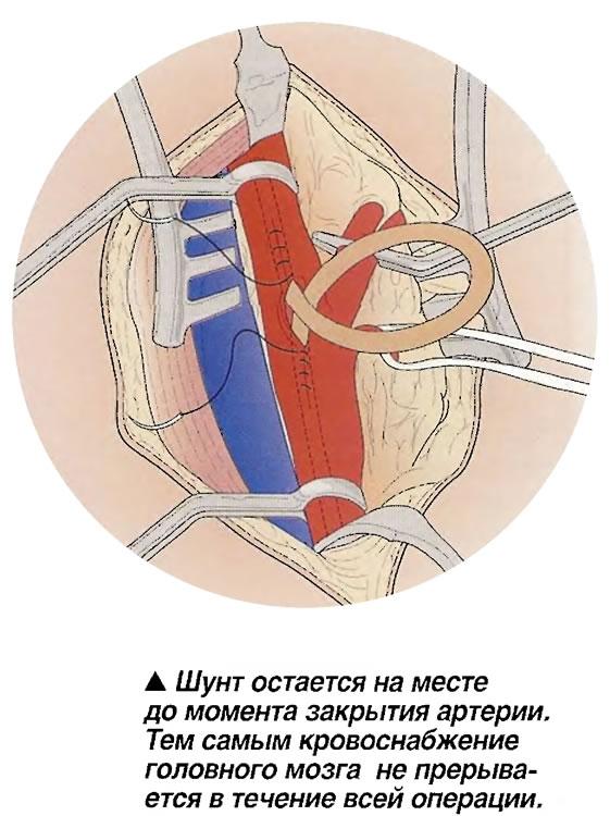 Шунт остается на месте до момента закрытия артерии