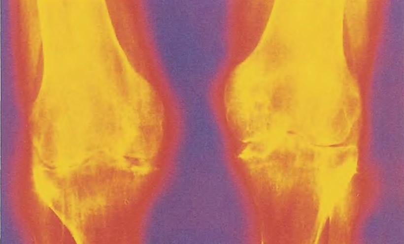 Симметрическая природа инфектартрита на рентгеновском снимке