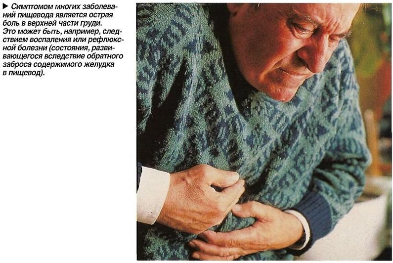 Симптомом многих заболеваний пищевода является острая боль в верхней части груди