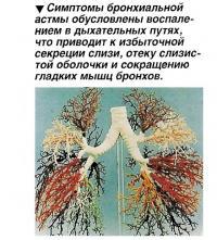 Симптомы бронхиальной астмы обусловлены воспалением в дыхательных путях