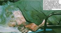 Симптомы гипотермии