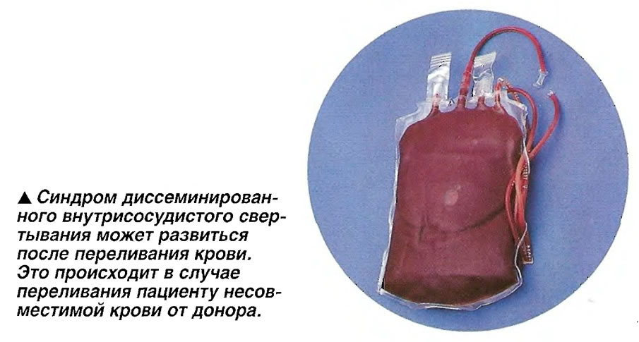 Синдром диссеминированного внутрисосудистого свертывания может развиться после переливания крови