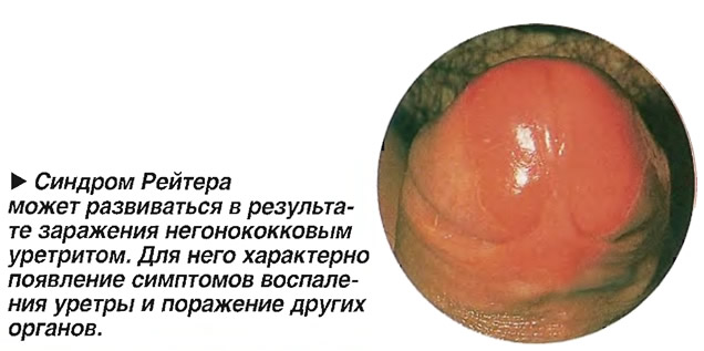 Синдром Рейтера может развиваться в результате заражения негонококковым уретритом
