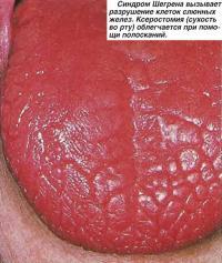 Синдром Шегрена вызывает разрушение клеток слюнных желез