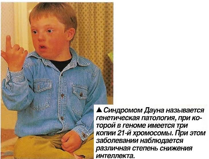 Синдромом Дауна - генетическая патология, при которой в геноме имеется три копии 21-й хромосомы