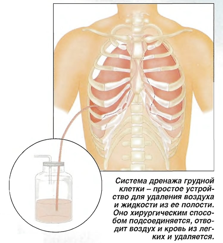 Система дренажа грудной клетки