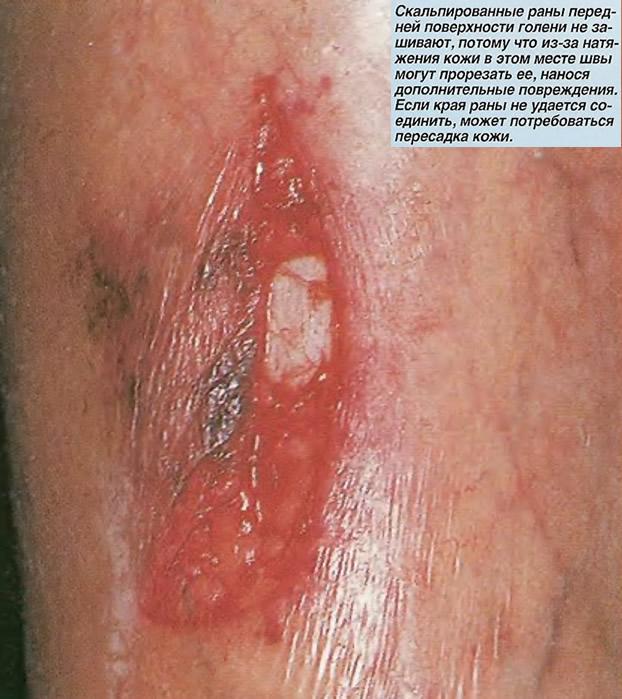 Скальпированные раны передней поверхности голени не зашивают