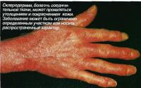 Склеродермия, болезнь соединительной ткани