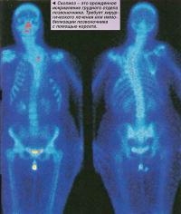 Сколиоз - это врожденное искривление грудного отдела позвоночника