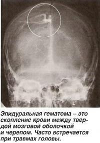 Скопление крови между твердой мозговой оболочкой и черепом