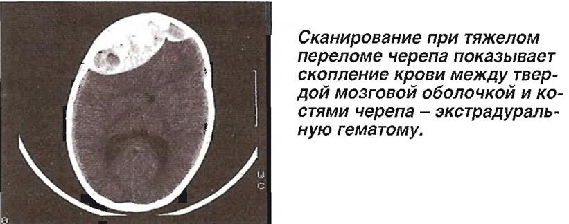 Скопление крови между твердой мозговой оболочкой и костями черепа