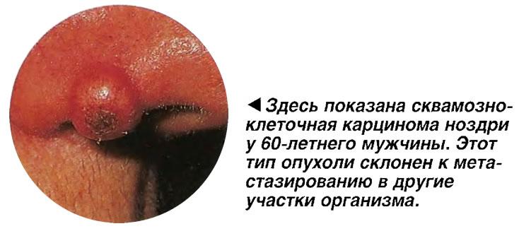 Сквамозно-клеточная карцинома ноздри