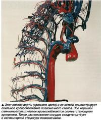 Слепок аорты