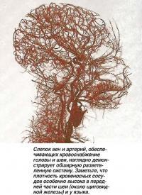 Слепок вен и артерий обеспечивающих кровоснабжение головы и шеи