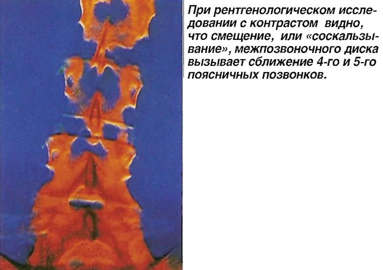 Смещение или «соскальзывание» межпозвоночного диска
