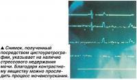 Снимок, полученный посредством цистоуретрографии, указывает на наличие стрессового недержания мочи