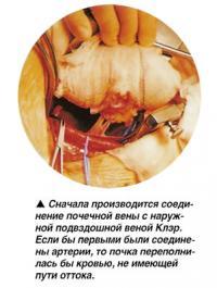 Соединение почечной вены