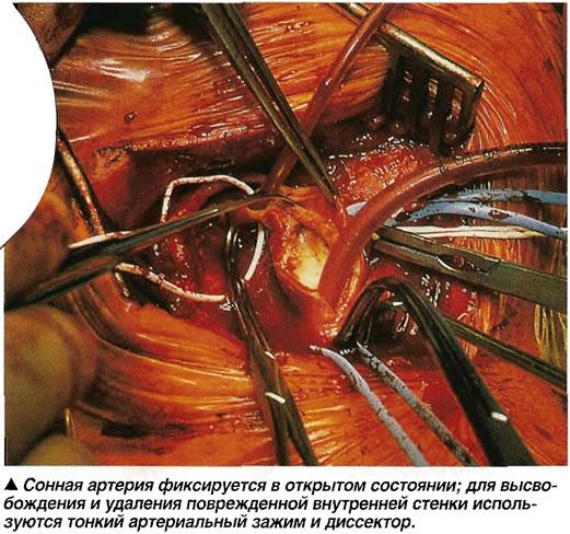 Сонная артерия фиксируется в открытом состоянии