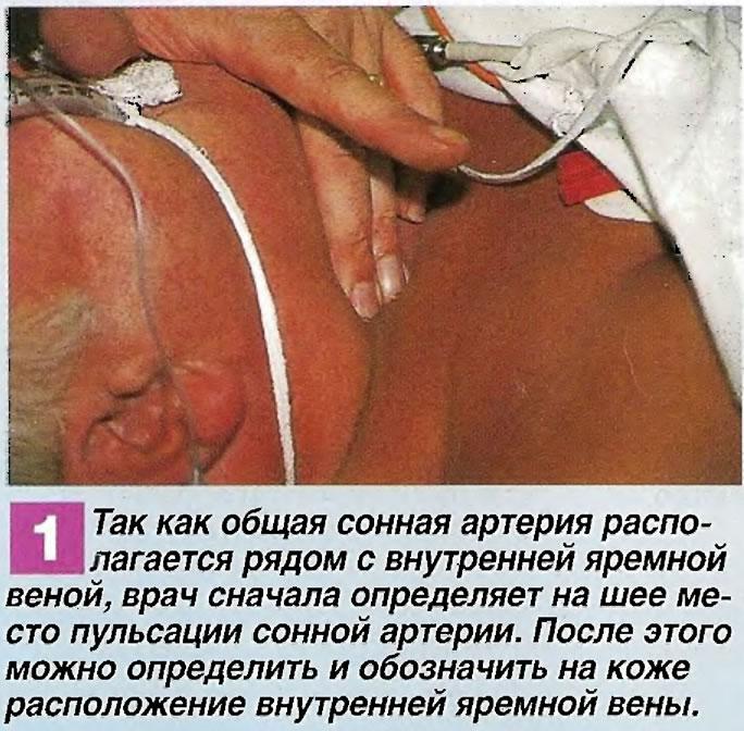 Сонная артерия располагается рядом с внутренней яремной веной