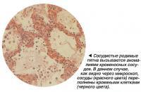 Сосудистые родимые пятна вызываются аномалиями кровеносных сосудов