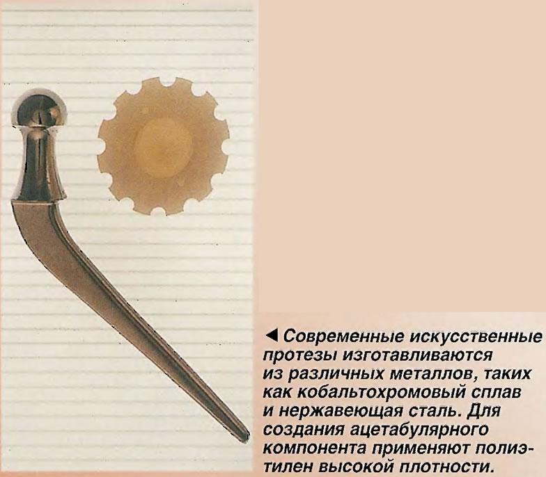 Современные искусственные протезы изготавливаются из различных металлов