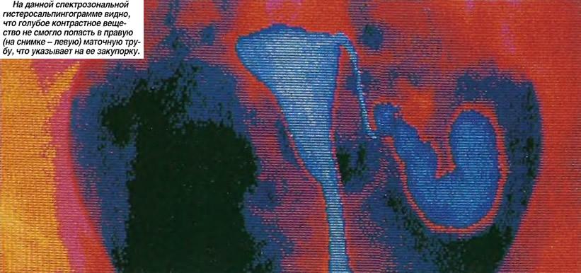 Спектрозональная гистеросальпингограмма