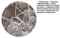 Сперматиды - незрелые сперматозоиды - видны в просвете семенных канальцев яичка