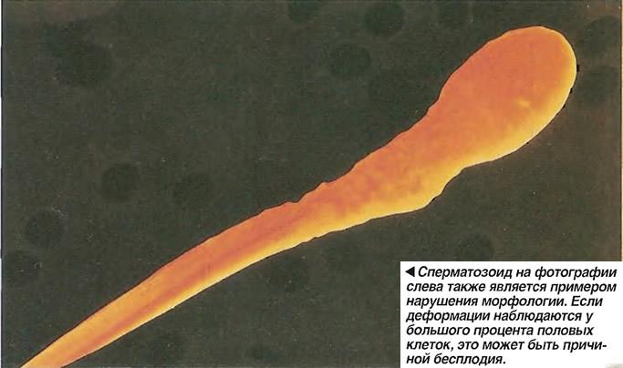 narushenie-morfologii-spermi-eto