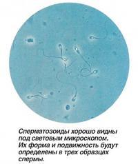 Сперматозоиды хорошо видны под световым микроскопом