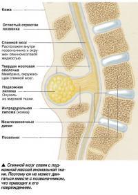 Спинной мозг спаян с подкожной массой аномальной ткани
