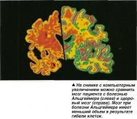 Сравнение мозга пациента с болезнью Альцгеймера (слева) и здоровый мозг (справа)