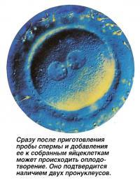 Сразу после приготовления пробы спермы может происходить оплодотворение